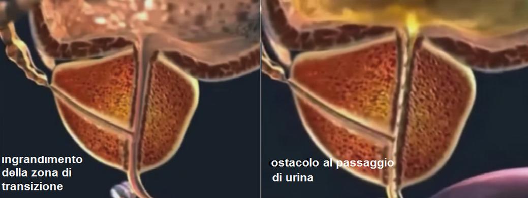 Fibrózis a longidáz- prosztatában Prosztata személyes tapasztalat